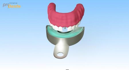 Implantate_Abdruck-006