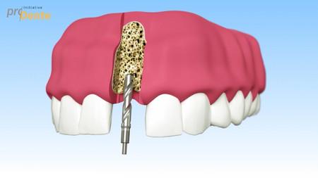 Implantate_Bohrer-002
