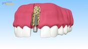 Implantate_Einheilkappe-005