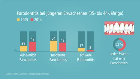 DMS-V-parodontitis-juengere-erwachsene-001
