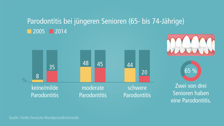 DMS-V-parodontitis-juengere-senioren-002