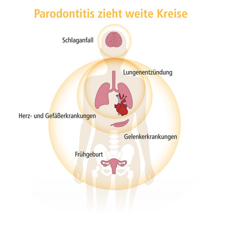 parodontitis-zieht-weite-kreise_quadratisch_header-003