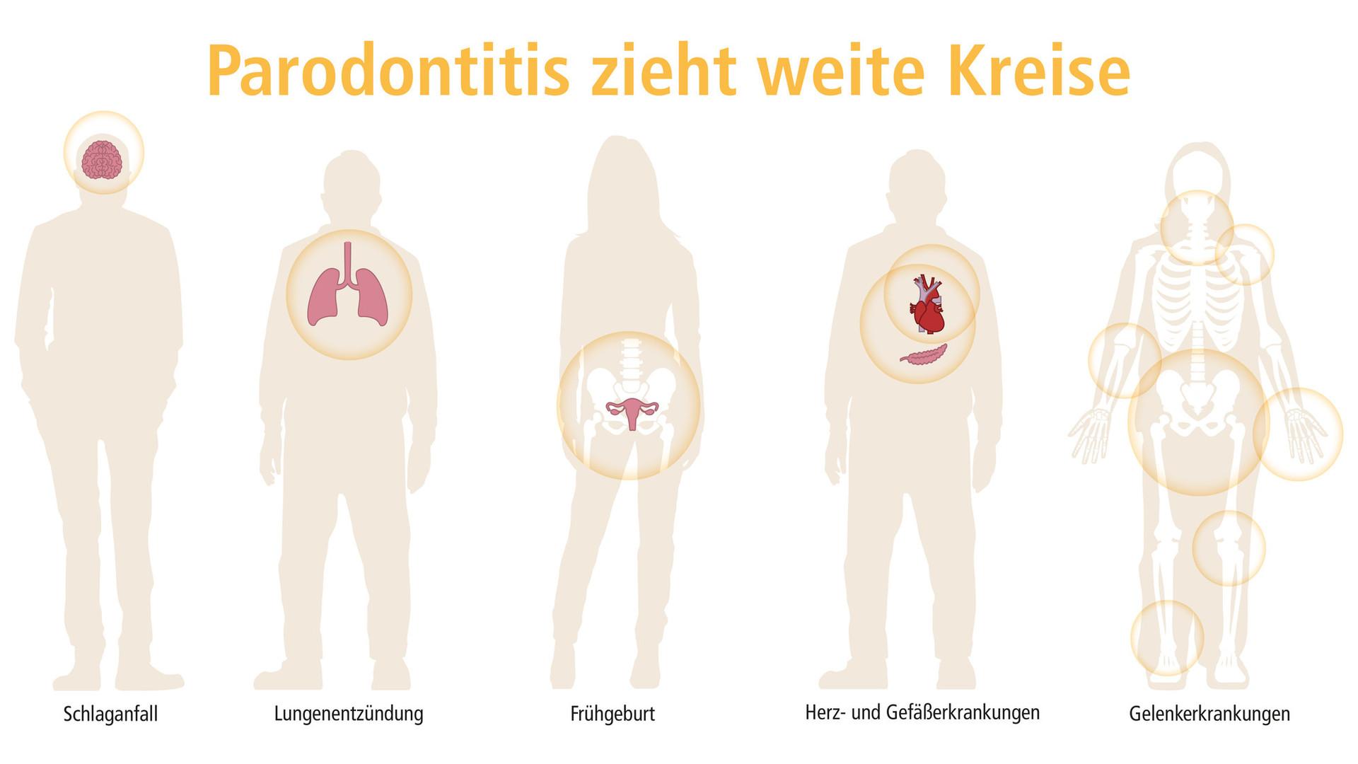 parodontitis-zieht-weite-kreise_quer_header-001