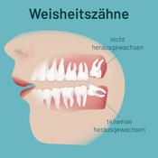 weisheitszaehne-002