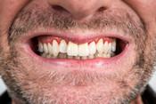 parodontitis_zahnfleisch-001