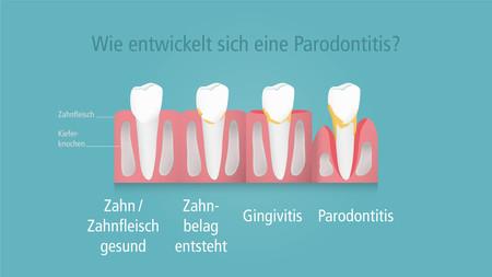 Wie-entwickelt-sich-eine-Parodontitis-001