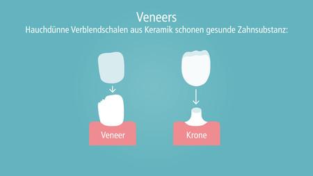 veneers-001