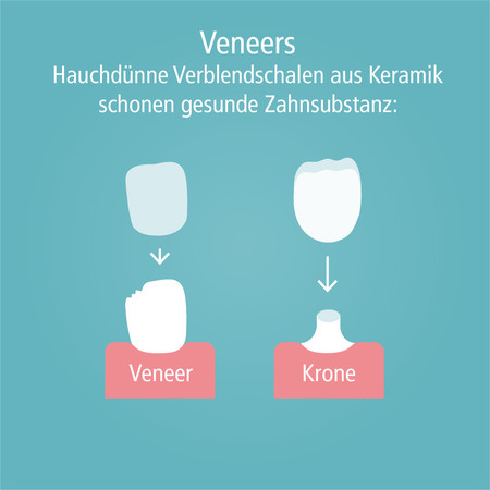 veneers-002
