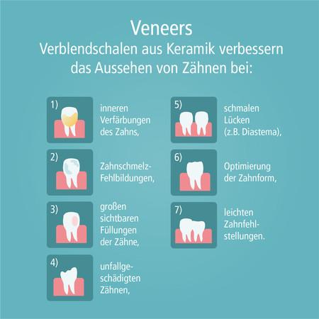 veneers-004