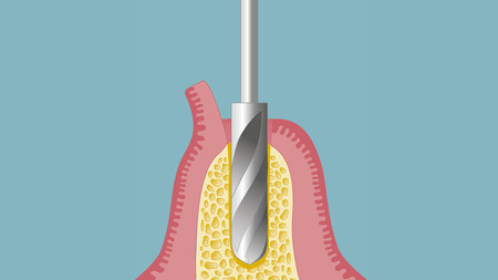 Implantate-001_quer