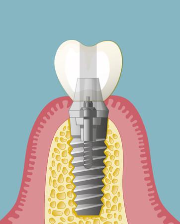 Implantate-004_hoch