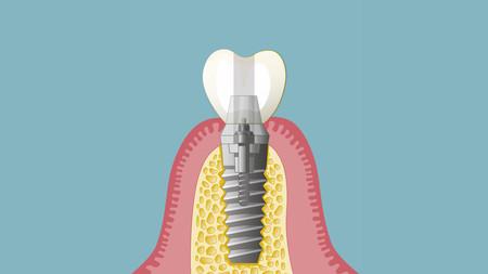 Implantate-004_quer