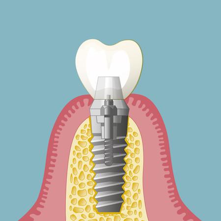 Implantate-005_quadratisch