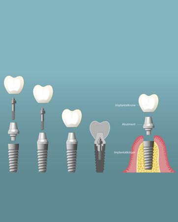 Implantate-006_hoch