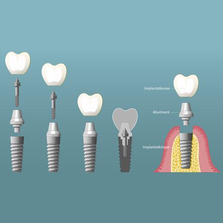 Implantate-006_quadratisch