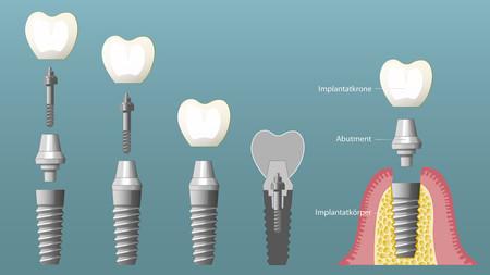 Implantate-006_quer