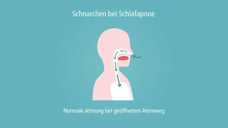 schnarchen_unterkieferprotrusionsschiene-001