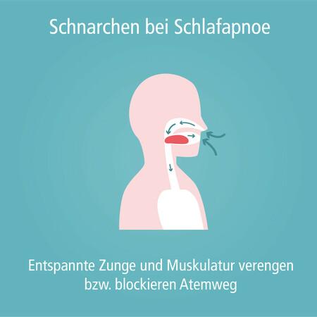 schnarchen_unterkieferprotrusionsschiene-002_quadratisch