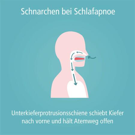 schnarchen_unterkieferprotrusionsschiene-003_quadratisch